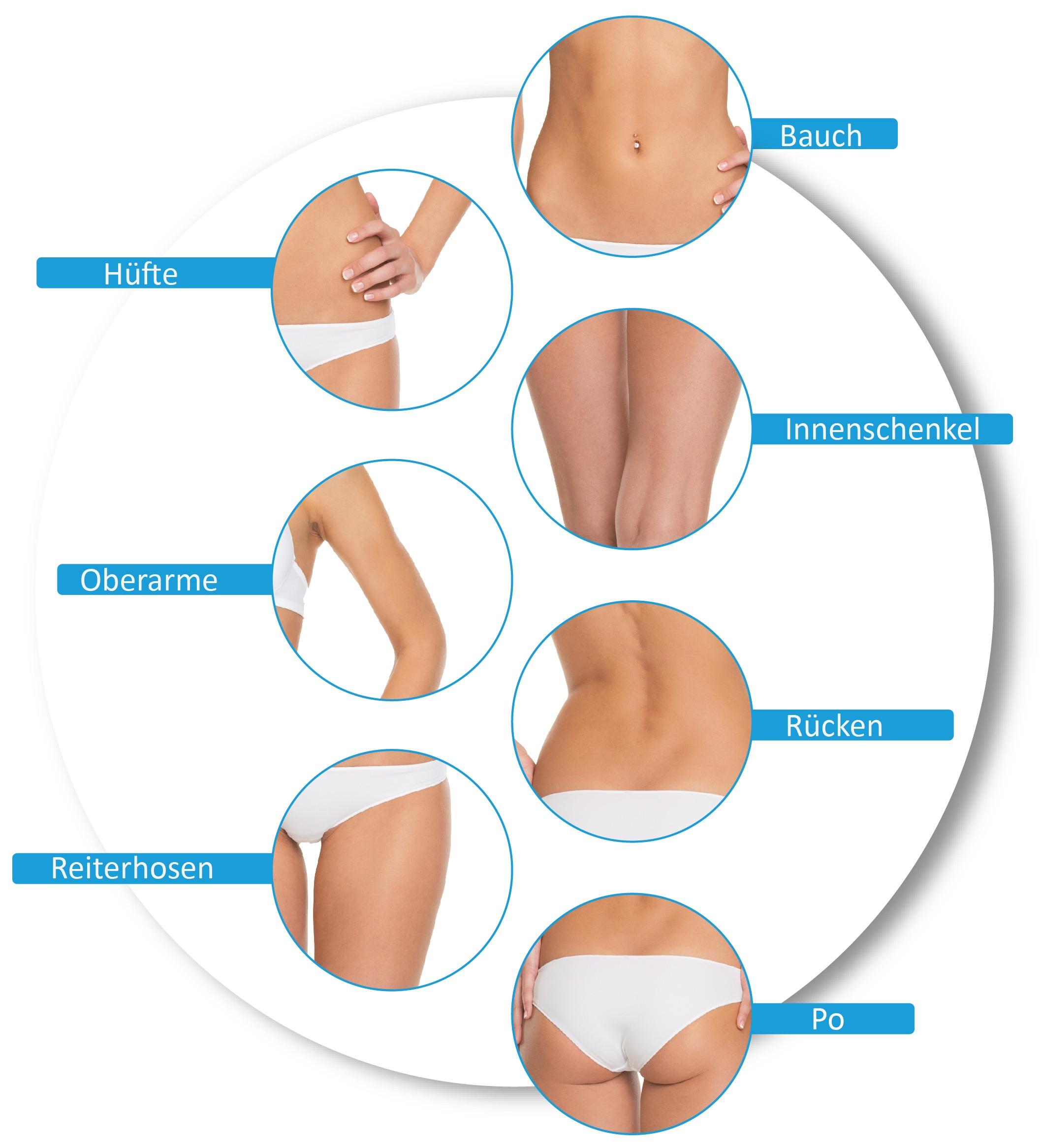 Kryolipolyse Körperzonen