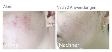 Akne, Aknebehandlung, kosmetik akne, akne kosmetik, aknenarben, akne entfernen