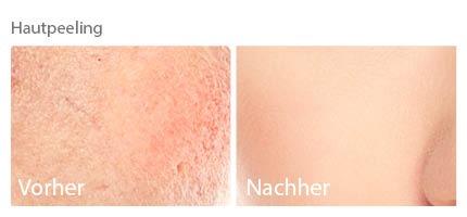 Mikrodermabrasion, kosmetik, kosmetik chemnitz, kosmetikstudio, kosmetikstudio chemnitz, gesichtsbehandlung, gesichtskosmetik, gesichtskosmetik chemnitz