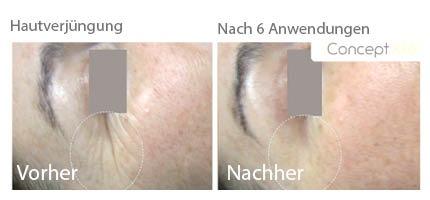 gesichtsbehandlungen, Anti Aging, kosmetik chemnitz, haut manufaktur kosmetik, haut manufaktur chemnitz, haut manufaktur, kosmetik,