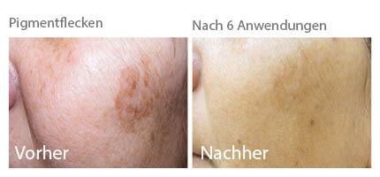 altersflecke entfernen, altersflecke, altersflecke kosmetik, altersflecke behandeln, ipl altersflecke, ipl pigmente