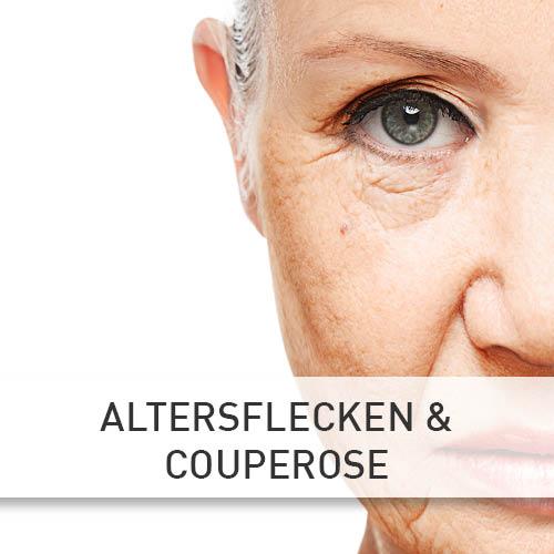 Kosmetikstudio Chemnitz Altersflecken & Couperose