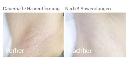 dauerhafte haarentfernung ergegnisse, dauerhafte haarentfernung erfahrungen, dauerhafte haarentfernung vorher nachher, preise dauerhafte haarentfernung, haarentfernung laser, haarentfernung ipl, enthaarung, enthaarung laser, enthaarung ipl
